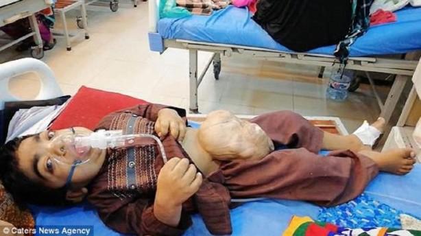 9 yaşındaki çocuk fıtık yüzünden yürüyemiyor