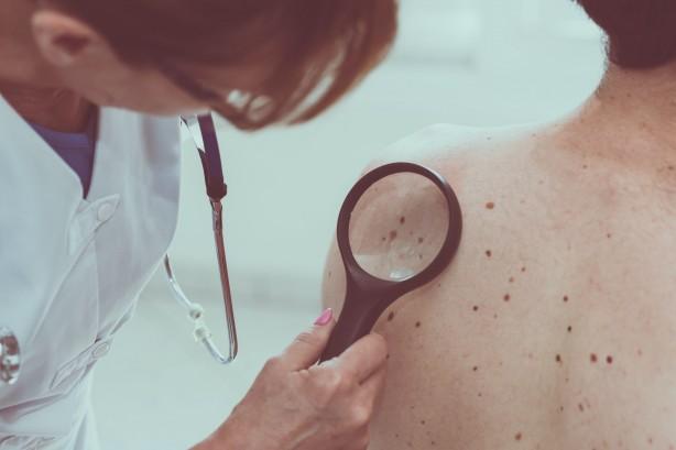 Foto - CİLT KANSERİNE DİKKAT Uzun süre ve yüksek dozda ultraviyole ışınlarına maruz kalmak cildimizde hem akut değişikliklere yol açıyor hem de bazı cilt kanserlerinin oluşumuna öncülük ediyor. Bunun için yapabileceğimiz şey güneş ışınlarının etkisinin yoğun olduğu saatlerde (11-16 arası) direk güneş ışığına çıkmaktan kaçınmak, koruyucu kıyafetler seçmek ve maruziyet kaçınılmazsa yüksek koruyucu faktörlü kremler kullanmak. Çoğu cilt kanseri için öncü lezyonlar çocukluk çağında aldığımız UV ile bağlantılı olduğundan özellikle çocukluk çağından itibaren dikkatli olunması gerekiyor. Bu konuda anne-babalara da büyük görev düşüyor. Bununla birlikte aşırı terleme ile birlikte nemli kalan cilt bölgelerinde cilt mantarlarında artış sık görülebiliyor. Uygun kıyafet ve iç çamaşırı seçimi (aşırı terletmeyen, çabuk kuruyan vs) sık iç çamaşırı değişimi bundan korunmada önemli rol oynuyor.