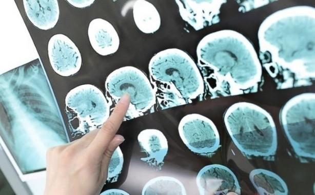 Foto - Beyin tümörlerinin sıklıkla normal beyin dokusuna hücum ettiği veya baskı yaptıklarını kaydeden Op.Dr. Bıkmaz,