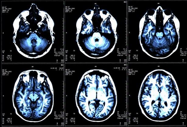 Foto - Bazen kanser beyne akciğer veya göğüs gibi başka alanlardan yayılabilir. O zaman bu tip tümörler, ikincil (veya metastatik) beyin tümörü olarak adlandırılır. Diğer kanserlerle karşılaştırıldığında beyin tümörleri nispeten az görülmektedir; ancak yerleşimleri ve bazen agresif yapılarından ötürü tehlikeli oldukları düşünülmektedir