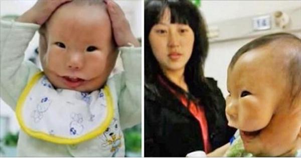 Doktorlar doğumdan sonra bebeğin yüzünü gördüklerinde hayrete düştü. Kangkang isimli bebek doğduğunda çok farklı görünüyordu ve ebeler, annenin bebeğini başta görmesine izin vermedi.