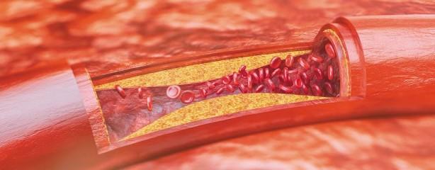 Foto - Kalp damarındaki stabil bir plağın yanlış bir ilaç kullanımına bağlı olarak yırtılması sonucu kişinin ölümüne neden olabilecek olaylar gelişebilir.
