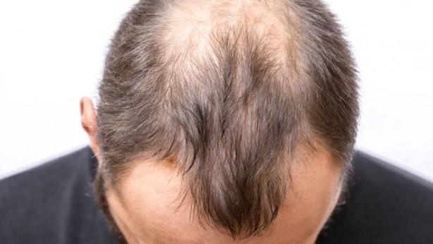 Foto - 3- SEBEPSİZ SAÇ KAYBI Bu güne kadar çok ortaya çıkmasa da koronavirüsü geçiren kişilerde saç kaybı yaşanıyor. Eğer sebepsiz bir saç kaybı yaşıyorsanız, koronavirüs bulaşmasından dolayı olabileceğini dikkate almanız gerekmektedir.