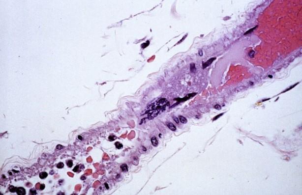 Foto - Ceviz yağının özellikle endotelyal hücrelerin sağlamlığı için çok faydalı olduğu kanıtlandı.
