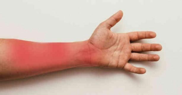 kol uyusmasinin nedenleri nelerdir