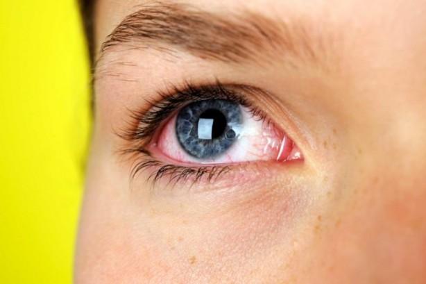 Foto - Sonbahar alerjilerinin belirtileri nelerdir? Sonbahar Alerjilerinin Belirtileri Nelerdir? Alerjilerin belirtileri kişiden kişiye değişiklik gösterir; bazı kişilerde belirtiler daha şiddetli olabilir. Sonbahar alerjilerinin tipik belirtileri ise şöyle sıralanabilir: Burun akıntısı, burun tıkanıklığı, gözlerde sulanma, hapşırma, öksürme, hırıltı, gözlerde ve burunda kaşınma, göz altlarında morarma.