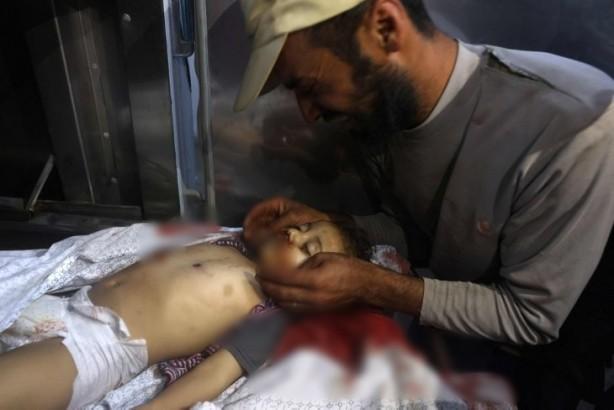 Foto - Çocuk, kadın ayırt etmeden sivilleri hedef alan İsrail, kahpeliğini bir kez daha tüm dünyaya ilan etti.
