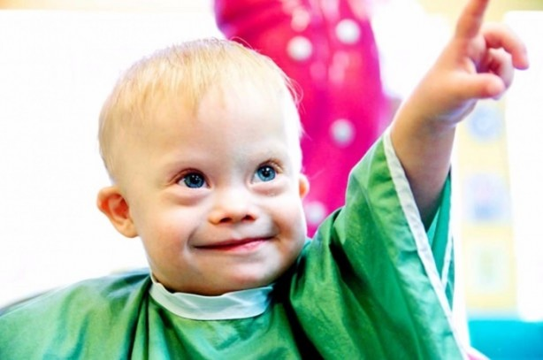 down syndrome You have probably seen people who have down syndrome they have certain physical features, such as a flatter face and upward slanting eyes they may have medical problems, too, such as heart defects kids with down syndrome usually have trouble learning and are slower to learn how to talk and take.