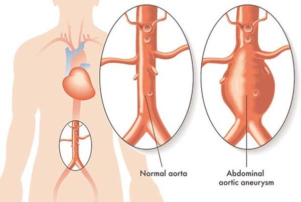 İşte aort damarının yırtılma nedenleri: