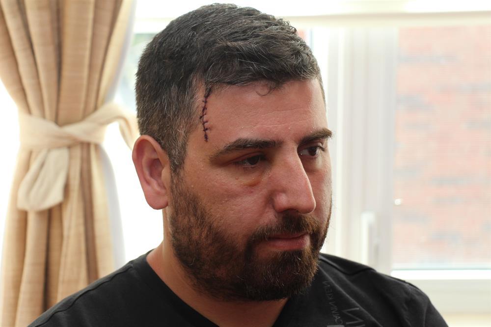 PKK yandaşlarının saldırısına uğrayan Alp Kenan Dereci