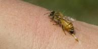 Arı sokmasına ne iyi gelir?