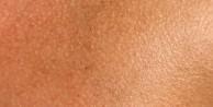 Aşırı hijyen deri için zararlı