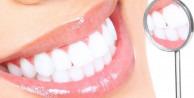 Diş beyazlatanlar dikkat! Karartıyor...