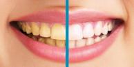 Diş sararmasının 6 nedeni