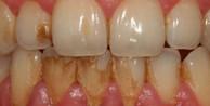 Diş tartarları nasıl giderilir?