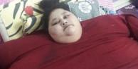 Dünyanın en şişman kadını 250 kilo verdi