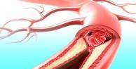 Kalp damarlarınızı temizleyen 9 yiyecek