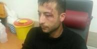 CHP'liler saldırganı bu hale getirdi!