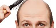 Saç dökülmesini önlemek istiyorsanız...