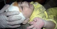Suriye'de 1 aylık bebek böyle kurtarıldı