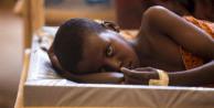 Yemen'de 35 bin 217 kişide kolera şüphesi