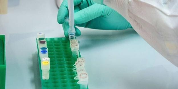 20 milyonluk ülkede koronavirüs vaka sayısı 80 bine yaklaştı