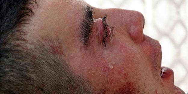 5 yıldır gözlerini kırpamıyor, adeta kan ağlıyor!