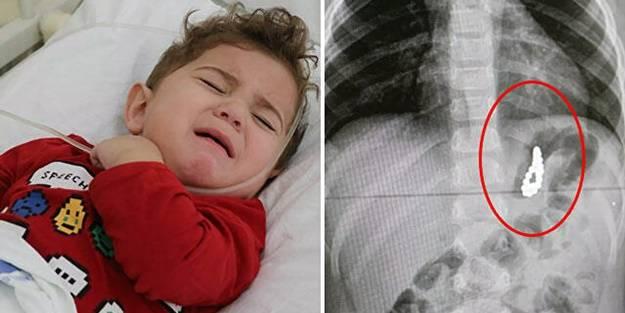 Aileler dikkat! 19 aylık bebeğin midesinden çıktı