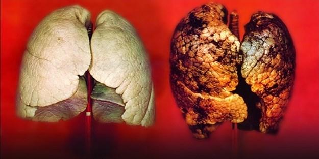 Akciğer temizleme kürü