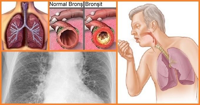 Akut Bronsit Belirtileri Nelerdir