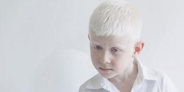 Albino (Albinizm) hakkında bilmeniz gerekenler