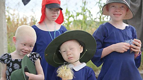 Albinolar katlediliyor