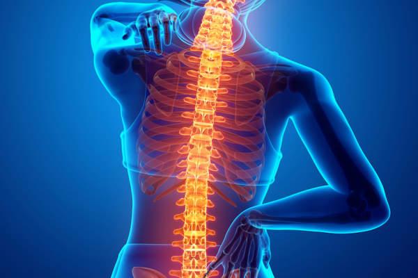 Ankilozan spondilit nedir? Ankilozan spondilit belirtileri nedir nasıl tedavi edilir?