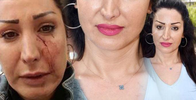 Antalya'da 'patatesi değiştir' dedi, garson yüzüne bıçak fırlattı
