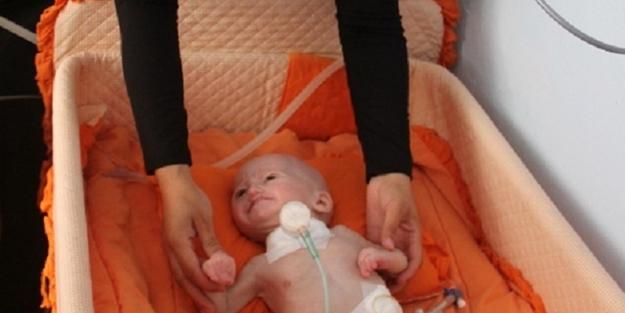 'Aslan Sendromu'yla doğdu - FOTO