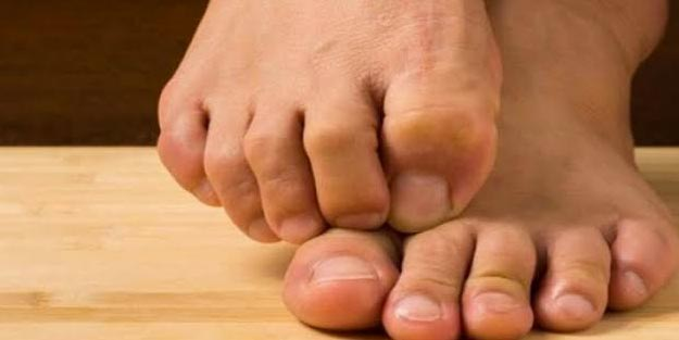 Ayak kaşıntısına ne iyi gelir? Ayak kaşıntısı nasıl geçer?