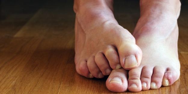Ayak kokusunu önlemek için neler yapmak gerekir?