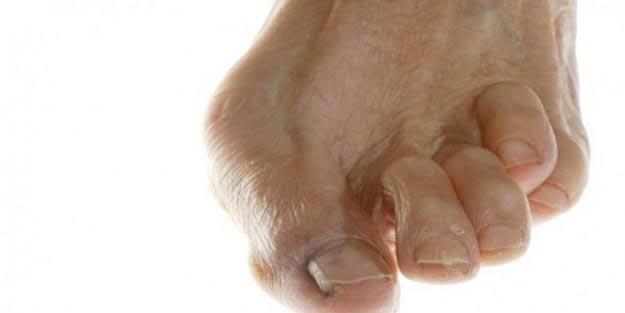 Ayak parmak eğriliği neden olur? Ayak parmağı eğriliğini tedavi etme yolları