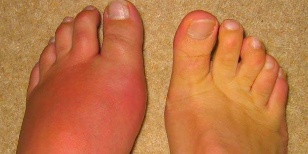 Ayak şişmesi neden olur ne iyi gelir | Ayak şişliği için hangi doktora gidilir