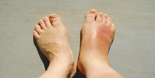 Ayak şişmesinin 5 nedeni