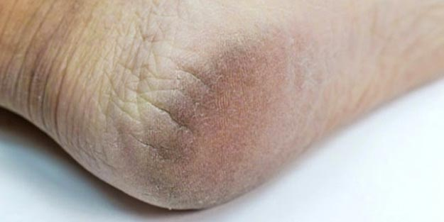 Ayak topuk çatlağı hangi doktora gidilir