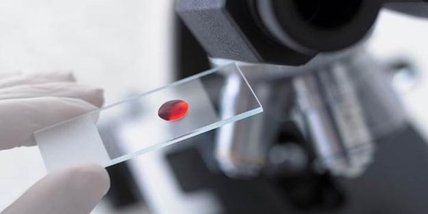 Basit bir kan testi ile kanser riskinizi öğrenebilirsiniz