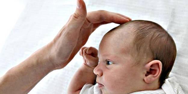 Bebeklerde kafatası şekil bozukluğuna dikkat!
