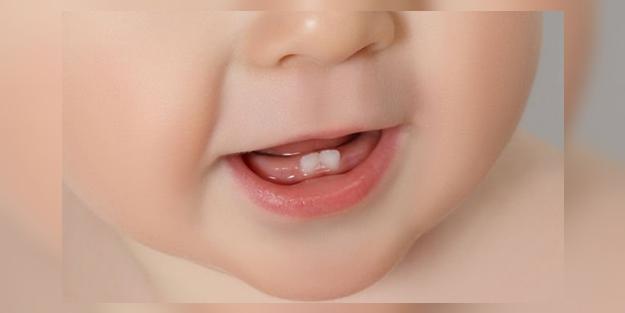 Bebeklerin diş çıkardığı nasıl anlaşılır? | Bebeklerde diş çıkarma belirtileri