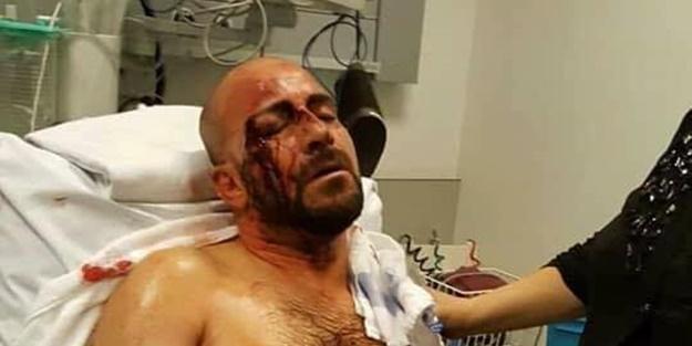 Belçika'da Türk vatandaşa saldırı