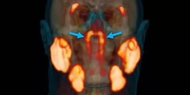Bilim dünyası şokta! Kafatasında yeni organ bulundu