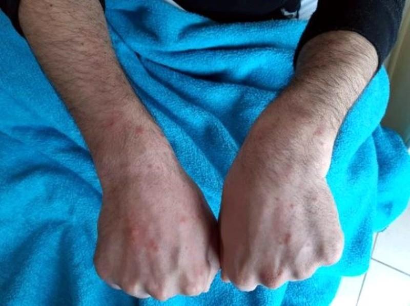 Bu görüntüler Cerrahpaşa'dan! Koronavirüse yakalanan hastaların derileri böyle oluyor