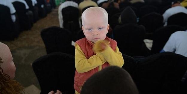 Bu ülkede albinolar öldürülmekten korkuyorlar