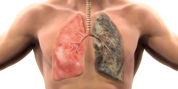 Ciğerleri bir haftada tamamen temizliyor! İşte nikotini dışarı atan süper besinler...