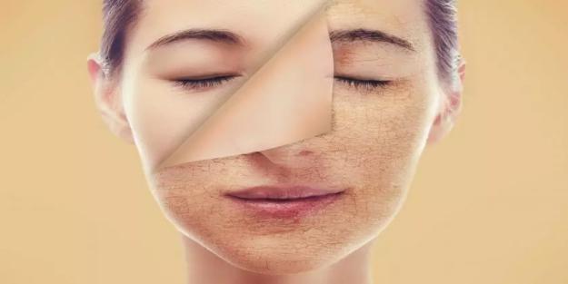 Cilt sarkmasına iyi gelecek maskeler! Yüz sarkmasına doğal çözüm nedir? Yüz sarkmasında yapılacak egzersizler!